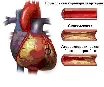 Атеросклероз коронарных сосудов сердца.